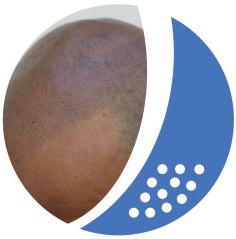 Haarbodenaufbau Follikelstimulation nachher