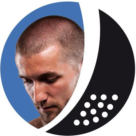 Werden Sie Modell für Kopfhautpigmentierung (SOH®)