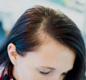Scalp Optic Hair vorher